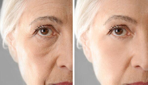 polêmica imagens de antes e depois